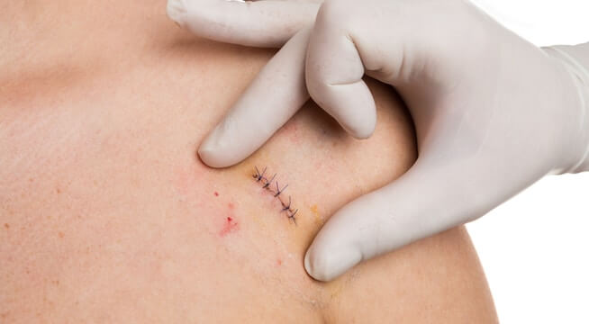 Wound Care: 4 Tips for Taking Care of Stitches | Complete Care