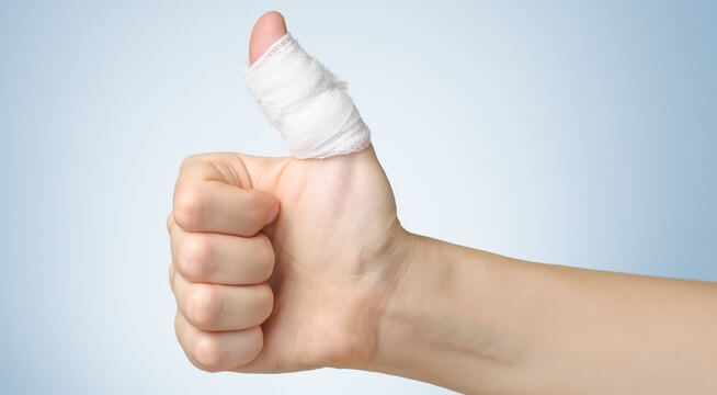Is My Thumb Broken or Sprained