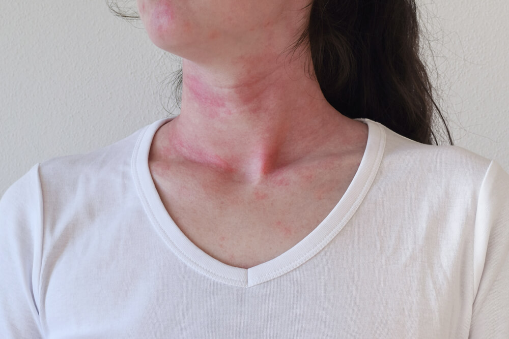 What to Do When Someone is in Anaphylactic Shock